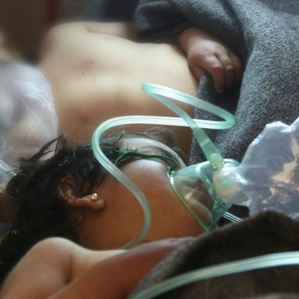 Un bambino siriano ricoverato dopo l'attacco con armi chimiche a Idlib