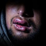 rifugiati migranti croazia report